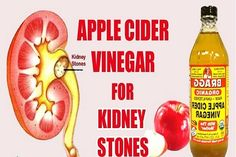 Do you know the other name for kidney stone in medical terms? It's also called nephrolithiasis. Normally we know it to be forming in our kidneys. But it can also form in our urinary tract. So why does it form? It forms for two reasons: 1) there...