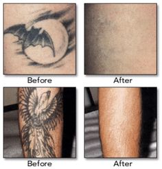 Before and After Tattoo Removal via tattooremovalpricer.com