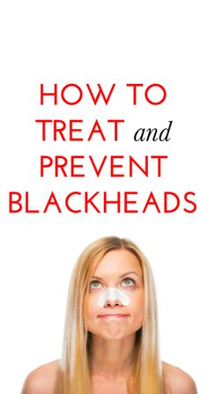 Tips for treating  preventing blackheads