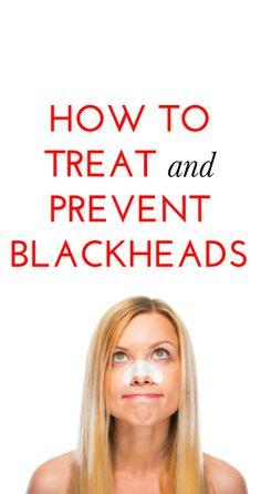 Tips for treating  preventing blackheads