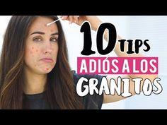 Cómo Eliminar un Grano de la Cara con Remedios Caseros Rápido