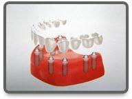 vollstanding Dental Implant Cost, Popular Pins, Hungary, Health