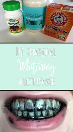 Remedies For Teeth Whitening DIY Charcoal Whitening Toothpaste Teeth Whitening Remedies, Natural Teeth Whitening, Whitening Kit, Skin Whitening, Diy Charcoal Toothpaste, Charcoal Teeth Whitening, Baking With Coconut Oil, Teeth Implants, Dental Implants