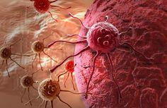 Esta planta podría ser hasta 100 veces mejor que una quimioterapia a la hora de tratar el cáncer. Mata las células cancerígenas sin efectos secundarios.