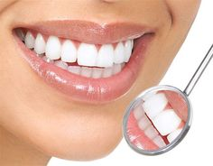 Teeth-Whitening-4-You-Review -ReviewsCircle.com