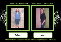 After Gastric Bypass Surgery...No more hanging or wrinkled skin!  No need for surgery...wrap your skin back to skinny again!!!