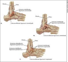 Management of Ankle Sprains - American Family Physician Ankle Anatomy, Foot Anatomy, Human Anatomy, Ankle Ligaments, Ligament Tear, High Ankle Sprain, Musculoskeletal System, Sprained Ankle