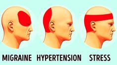 Comment se débarrasser d'un mal de tête sans médicament en 5 minutes  Quand tu sens que ta tête va exploser et que tu n'as pas les médicaments nécessaires sous la main, tu as l'impression qu'il n'y a pas d'issue. Mais ce n'est pas vrai. Il existe une manière scientifique de te débarrasser des maux de tête...