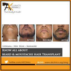 Facial Hair Transplant- #Beard and #Moustache. #AKClinics #hairtransplant #facialhairtransplant