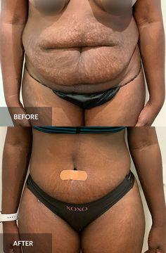 Tummy Tuck: before & after, 1 month post-op  #tummytuck #abdominoplasty #plasticsurgery Tummy Tuck Before After, Tummy Tucks, Abdominal Muscles, 1 Month, Plastic Surgery, Bikinis, Abs, Bikini