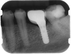 Straumann implant na poziciji zuba 36 sa krunicom #straumann #tissuelevel #implant #dentalimplant #xray #radiography #oralsurgery #dentistry #implantology by _eurodent_ Our Oral Surgery Page: http://www.myimagedental.com/services/oral-surgery/ Google My Business: https://plus.google.com/ImageDentalStockton/about Our Yelp Page: bit.ly/1KZUPer Our Facebook Page: https://www.facebook.com/MyImageDental Image Dental 3453 Brookside Road Suite A Stockton CA 95219 (209) 955-1500 Mon - Fri: 8am - 5pm…