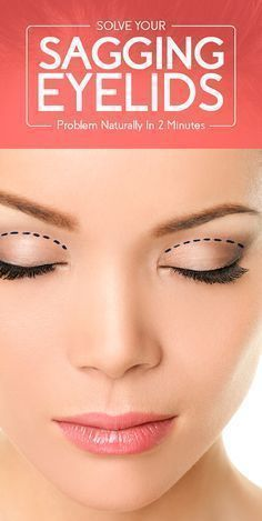 Want To Get Ride Of Sagging Eyelids Problem In Just 2 Minutes saggingEyelids homeremedies naturalremedies beauty beautytips skin skincare health healthy healthcare wellness 813744226400480602 Drooping Eyelids, Saggy Eyelids, Sagging Cheeks, Hooded Eyelids, Droopy Eyes, Sagging Skin, Beauty Hacks For Teens, Eyes Problems, Beauty Tips