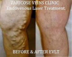 Varicose Veins Laser Treatment - http://www.usaveinclinics.com/