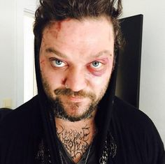 Bam Margera shared a photo of himself after he was attacked with the caption, 'Karma is real, leon hill.'