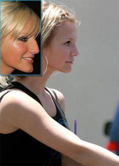 Ashlee Simpson Nose Job, A Plastic Surgeon's Perspective http://www.bestnosejob.com/ashlee-simpsons-nose-job.html