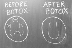 Before Botox After Botox Love it!