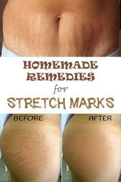 Natural Remedies DIY: 5 Effective Home Remedies for Stretch Marks - Stretch marks are unaesthetic marks that usually appear in areas with fat deposit, such as abdomen or hips, after a sudden weight loss. Over time they turn from pink or red to white. Beauty Tutorials, Beauty Hacks, Beauty Secrets, Diy Beauty, Beauty Care, Beauty Skin, Home Remedies, Natural Remedies, Health Remedies