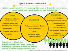 Spinal Stenosis – An Overview | Repinned by @michaelgleiber
