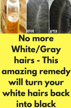 No more White/Gray hairs - This amazing remedy will turn your white hairs back into black Graying of hairs is a natural phenomenon that occurs with aging, but there are various factors that can cause this graying at an earlier age as well. If you happen to have gray or white hairs at early age, I mean before your forties, it can bring embarrassment and harm your confidence. For people suffering …