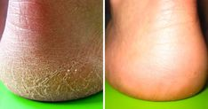 viraI: 10 Fast Ways to Get Rid of Calluses and Get Baby Soft Feet Diy Beauty Hacks, Petroleum Jelly, Sore Feet, Thick Skin, Aloe Leaf, Cracked Skin, Chamomile Tea, Get Baby, Body Wraps