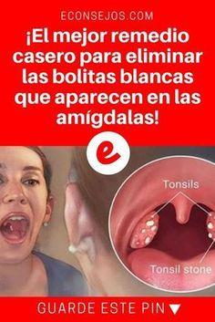 Bolitas blancas en la garganta | ¡El mejor remedio casero para eliminar las bolitas blancas que aparecen en las amígdalas! | Receta simple, económica y muy eficaz ↓ ↓ ↓