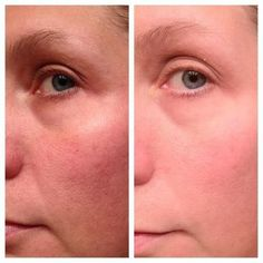2 weeks.. Before and After using Nerium!!  Amazing!! www.michellekinkaid.theneriumlook.com