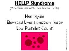 Severe Preeclampsia