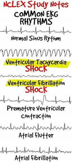 Common ECG Readings