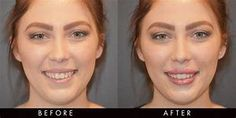 Dermal fillers are a common method of lip augmentation Cheek Fillers, Dermal Fillers, Hyaluronic Acid Fillers, Nasolabial Folds, Lip Augmentation, Muscle Function, Facial Muscles, Crows Feet, Hair Transplant