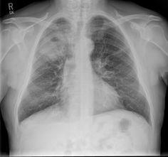 Mnemonic  C: cancer  bronchogenic carcinoma: most frequently SCC cavitatory pulmonary metastasis(es): again most frequently SCC A: autoimmune; granulomas from  Wegener's granulomatosis rheumatoid arthritis (rheumatoid nodules) etc. V: vascular (both bland and septic pulmonary embolus) I: infection (bacterial/fungal) pulmonary abscess pulmonary tuberculosis T: trauma - pneumatocoeles Y: youth-CPAM, pulmonary sequestration, bronchogenic cyst…