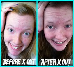 1000 Images About Acne Treatment For Teenagers On