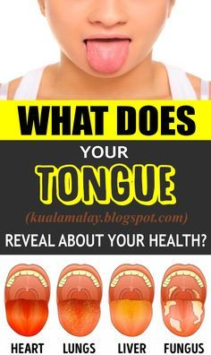 What Does Your Tongue Reveal About Your Health? health Have you taken a gander at your tongue as of late? If not, get a mirror and . Natural Cough Remedies, Cold Remedies, Herbal Remedies, Health Remedies, Sleep Remedies, Holistic Remedies, Acne Remedies, Natural Cures, Diet And Nutrition