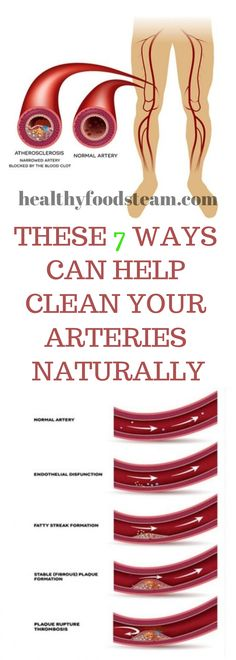 THESE 7 WAYS CAN HELP CLEAN YOUR ARTERIES NATURALLY Helping Cleaning, Natural Medicine, Stay Fit, Home Remedies, Weight Loss, Lose Weight, Canning, Healthy Foods, Women's Fashion