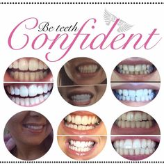 https://www.facebook.com/groups/946892048693754/. No peroxide, non abrasive , no sensitivity , stain removal, no damage to enamel. Order yours really good price quality results xx