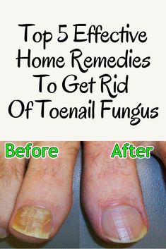 Watch This Video Mind Blowing Home Remedies for Toenail Fungus that Really Work Ideas. Astonishing Home Remedies for Toenail Fungus that Really Work Ideas. Toenail Fungus Home Remedies, Cure For Toenail Fungus, Best Toenail Fungus Treatment, Fungus Toenails, Toe Fungus Cure, Treating Toenail Fungus, Foot Remedies, Sleep Remedies, Beauty