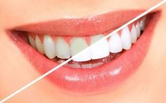 "Natural Teeth Whitening Remedies 13 Simple Ways To Get White Teeth Overnight - ""You will find that life is still worthwhile, if you just smile,"" said Charlie Chaplin. But what if you have yellow teeth? Here is how to get white teeth naturally Oral Health, Dental Health, Dental Care, Dental Group, Teeth Health, Public Health, Teeth Whitening Remedies, Natural Teeth Whitening, Whitening Kit"