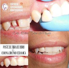 Endodoncia + Poste de Fibra de vidrio + Corona de Zirconio/Cerámica