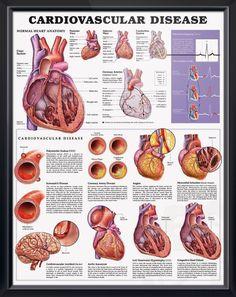 Cardiovascular Disease anatomy poster details normal heart anatomy and the top cardiovascular diseases (CVD). Cardiovascular chart for doctors and nurses.
