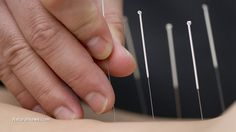 Acupuncture relieves hot flashes - so do these 6 other natural remedies