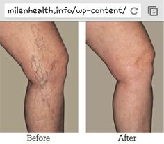 Relieve The Symptoms of Varicose Veins Using Essential Oils Healing blend for varicose veins: • 30 drops of Cypress • 20 drops of Lavender • 10 drops of Lemon • 20 drops of Lemongrass with 60ml of fractíonated coconut oil. Click the Picture for the Testimonial www.facebook.com/ElviesEssentials www.youngliving.org/elvielook
