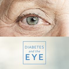 All eyes are on diabetes this month at Antietam Eye Associates. The best prevention for vision damage is good diabetic control. Come see us for needs that go beyond routine eye care, and healthy eyes that last a lifetime.  READ IT HERE https://www.linkedin.com/pulse/diabetes-eye-alison-ridenour