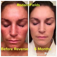 """Thanks for sharing your awesome results Catherine Cummins!   """"My 6 month results with the Reverse Regimen blow my mind!  People tell me all the time 'Well, you've always had nice skin.' When I look at my before picture, I had NO idea my sun damage was that bad!  I just liked being tan!  I am NEVER going back thanks to Rodan + Fields.""""  #reverse #rodanandfields #changingskin #changinglives"""