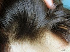 Lice In Hair
