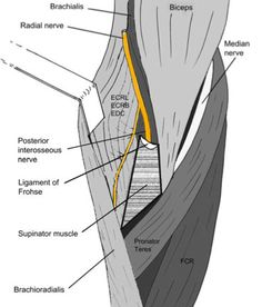Great post on Radial Tunnel Syndrome