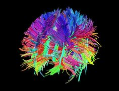 White matter fiber architecture of the brain. Measured from diffusion spectral imaging (DSI). The fibers are color-coded by direction: red = left-right, green = anterior-posterior, blue = through brain stem. Data provided by: Randy Buckner, PhD. Software: Trackvis. Visualization by Vaughan Greer.