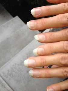 What your fingernails say about your health, part 1 of 2