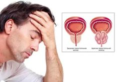Сегодня разговор пойдет о методах лечения аденомы предстательной железы. Все, кто захочет...