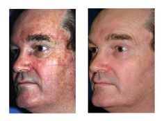 CO2 Laser Resurfacing Face how to get rid of hyperpigmentation here http://meladermpigmentreducingcomplex.org/