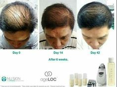 of,galvanic-Did you know the Galvanic Machine helps for hair too? goodness of galvanic ageLOCget back your confidence spa galvanicspa mir Galvanic Body Spa, Ageloc Galvanic Spa, Nu Skin Ageloc, Anti Aging Tips, Anti Aging Skin Care, Nutriol Shampoo, Younger Skin, New Skin, Skin Tightening