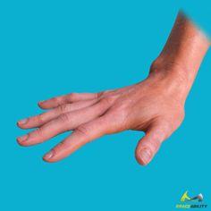 Finger Roll Trigger Finger Exercise